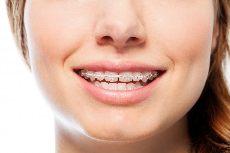 5 Reasons Adult Orthodontic Treatment Is Right For You
