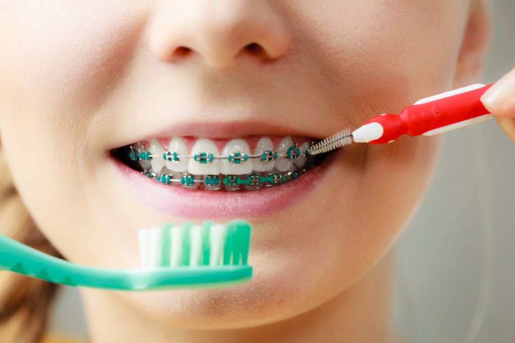 Girl Brushing Teeth with Braces
